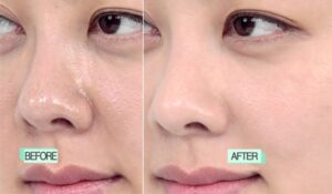 18 Home Remedies To Get Rid Of Clogged Pores Naturally